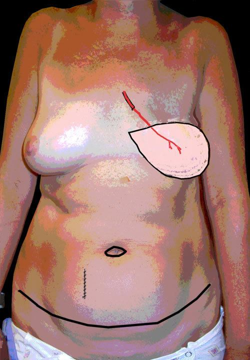 Diagram Showing After Tummy Fat Removal for Breast Reconstruction
