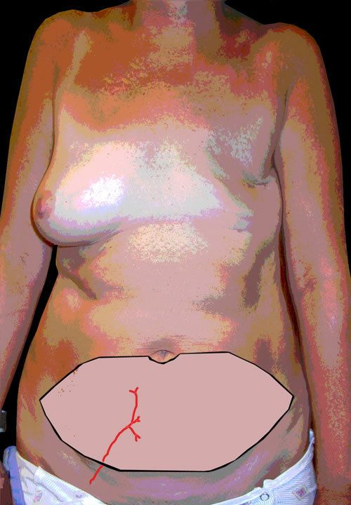 Diagram Showing Before Tummy Fat Removal for Breast Reconstruction | Reconstructive Surgery Options