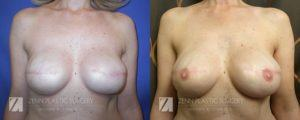 Raleigh Breast Reconstruction with Zenn Delay Patient 1.1