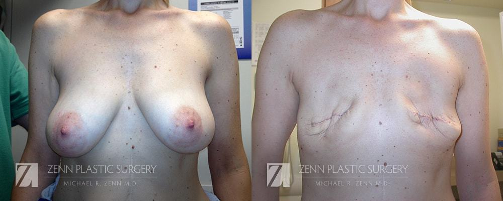 Raleigh Breast Reconstruction with Zenn Delay Patient 1