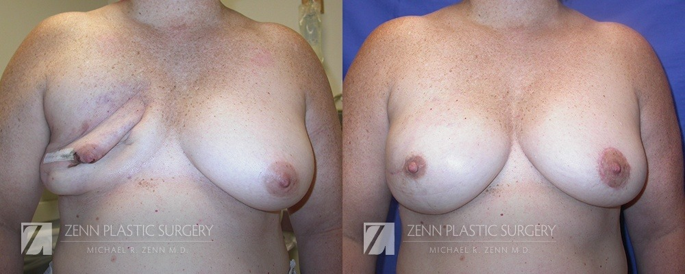 Raleigh Breast Reconstruction with Zenn Delay Patient 2