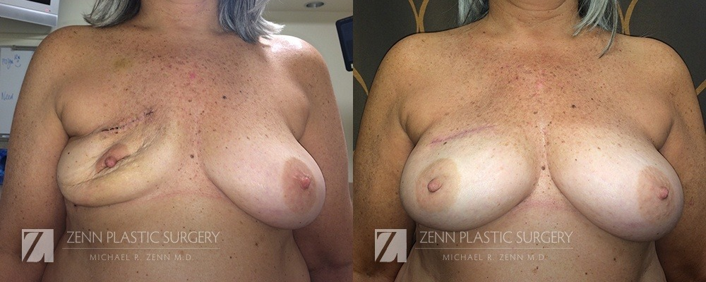 Raleigh Breast Reconstruction with Zenn Delay Patient 3