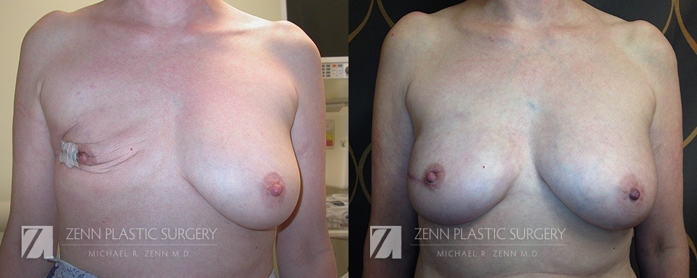 Raleigh Breast Reconstruction with Zenn Delay Patient 4