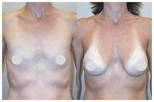 breast augmentation widget
