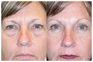 Blepharoplasty and Browlift Gallery Featured Image