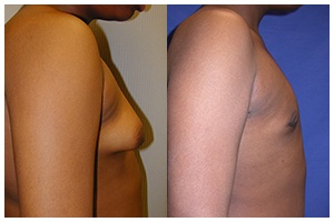 Gynecomastia Gallery Featured Image