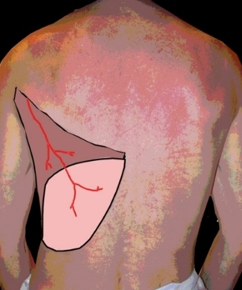 Diagram Showing Breast Reconstruction Flap From Back