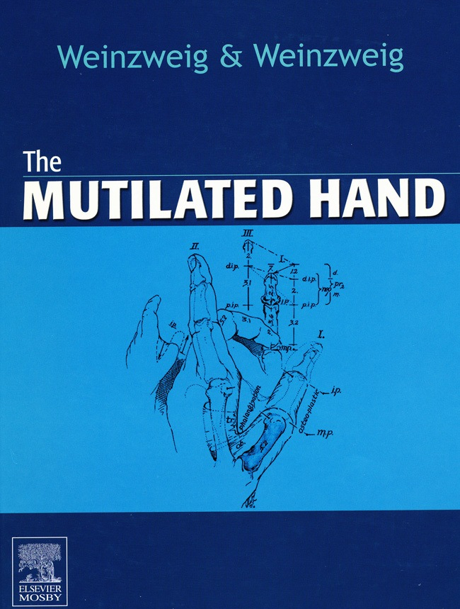 The Mutilated Hand Cover Page