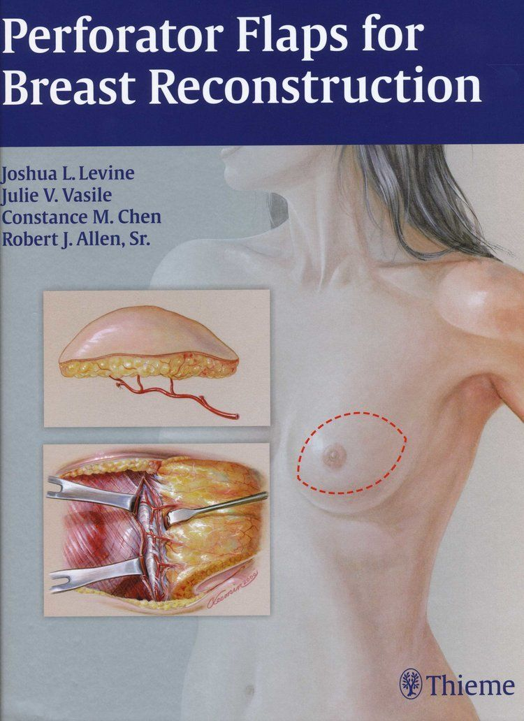Perforator Flaps for Breast Reconstruction Cover Page