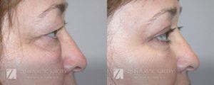 Raleigh Blepharoplasty Before and After Photos Patient 1.1