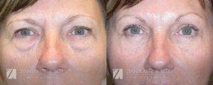 Blepharoplasty Before and After Photos Patient 2