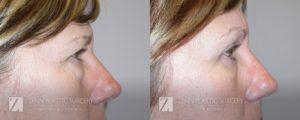 Raleigh Blepharoplasty Before and After Photos Patient 2.1