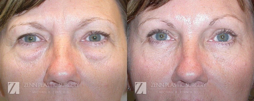 Raleigh Blepharoplasty Before and After Photos Patient 2
