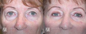Raleigh Blepharoplasty Before and After Photos Patient 3