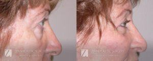Raleigh Blepharoplasty Before and After Photos Patient 3.1