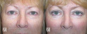 Raleigh Blepharoplasty Before and After Photos Patient 4
