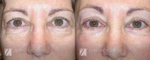 Raleigh Blepharoplasty Before and After Photos Patient 5