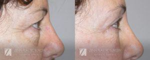 Raleigh Blepharoplasty Before and After Photos Patient 5.1
