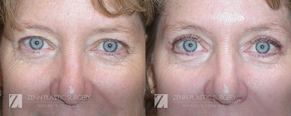 Raleigh Blepharoplasty Before and After Photos Patient 6