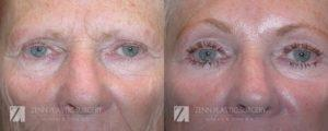 Raleigh Blepharoplasty Before and After Photos Patient 7