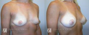 Breast Augmentation Before and After Photos Patient 1.1