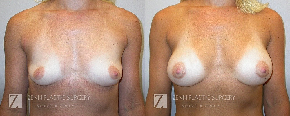 Raleigh Breast Augmentation Before and After Photos Patient 1