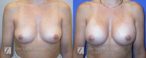 Breast Augmentation Before and After Photos Patient 11