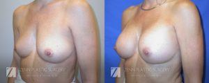 Breast Augmentation Before and After Photos Patient 11.1