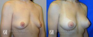 Breast Augmentation Before and After Photos Patient 12.1
