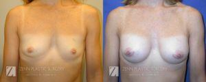 Breast Augmentation Before and After Photos Patient 13