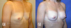 Breast Augmentation Before and After Photos Patient 13.1