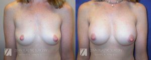Breast Augmentation Before and After Photos Patient 14