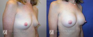 Breast Augmentation Before and After Photos Patient 14.1