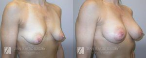Breast Augmentation Before and After Photos Patient 15.1