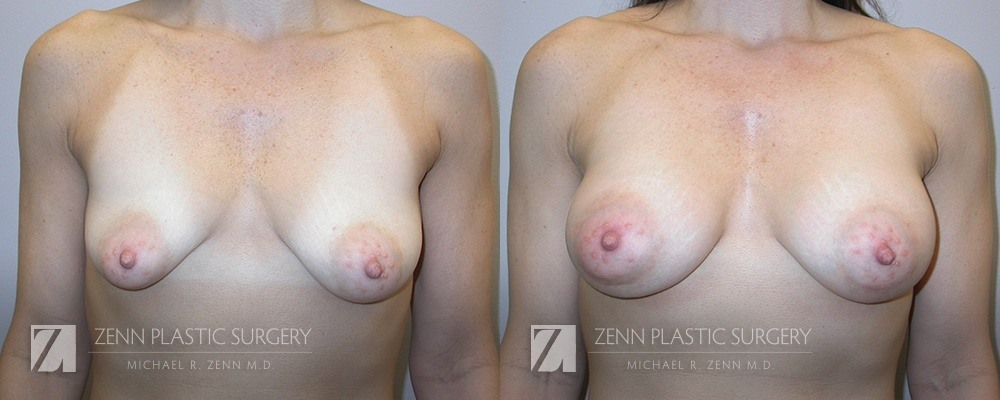 Breast Augmentation Before and After Photos Patient 15