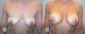 Breast Augmentation Before and After Photos Patient 16