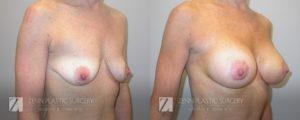Breast Augmentation Before and After Photos Patient 16.1
