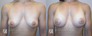 Breast Augmentation Before and After Photos Patient 17.1