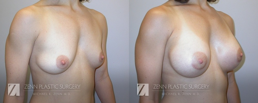 Breast Augmentation Before and After Photos Patient 17