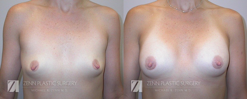 Breast Augmentation Before and After Photos Patient 18
