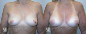 Breast Augmentation Before and After Photos Patient 2
