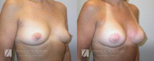 Breast Augmentation Before and After Photos Patient 2.1