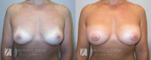 Breast Augmentation Before and After Photos Patient 3