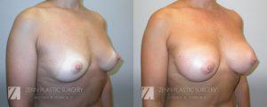 Breast Augmentation Before and After Photos Patient 3.1