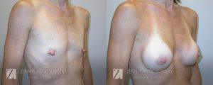 Breast Augmentation Before and After Photos Patient 4.1