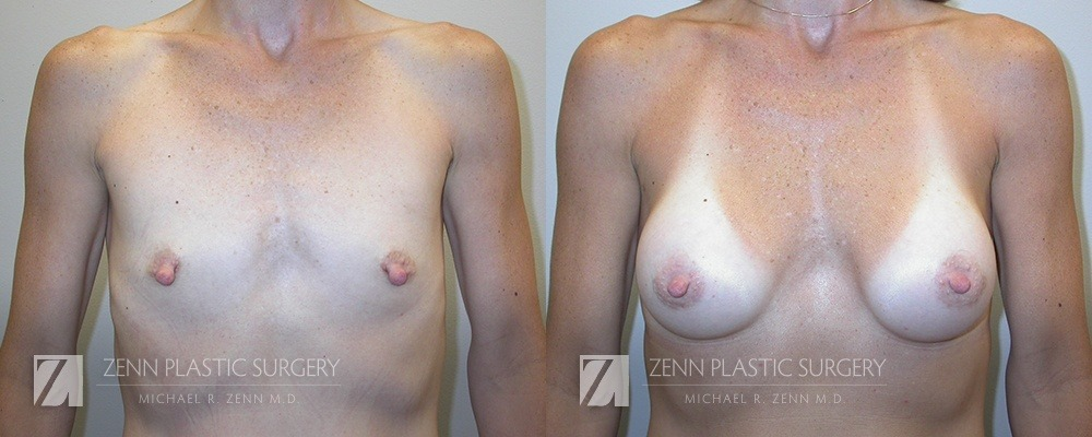 Breast Augmentation Before and After Photos Patient 4