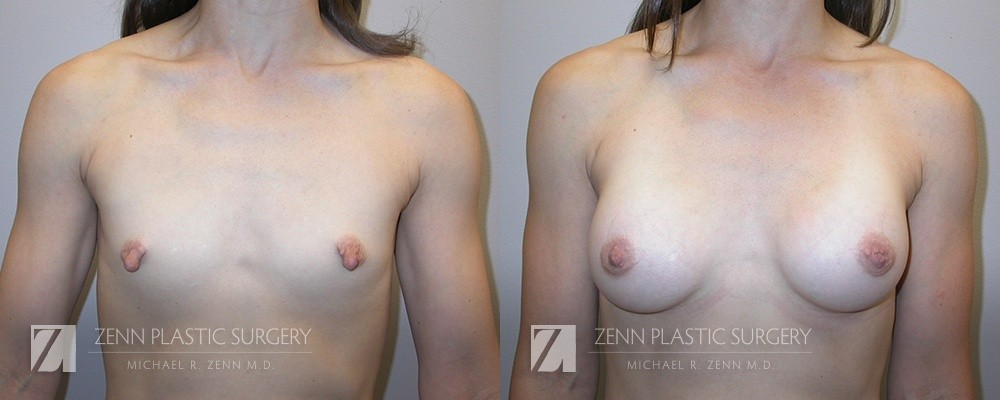 Breast Augmentation Before and After Photos Patient 5