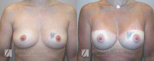 Breast Augmentation Before and After Photos Patient 6