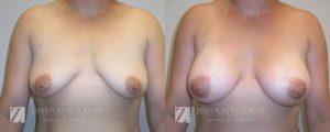 Breast Augmentation Before and After Photos Patient 7