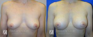 Breast Augmentation Before and After Photos Patient 8